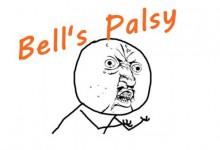 面瘫Bell's Palsy