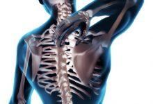 新西兰整脊师 Chiropractor