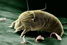 新西兰常见的尘螨过敏 dust mite allergy