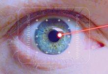 新西兰可以做近视眼激光手术吗?