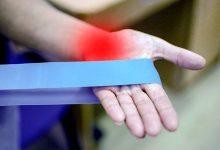 新西兰公立医疗系统对类风湿性关节炎的治疗
