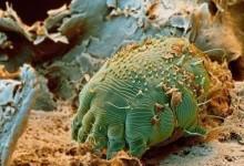 新西兰疥虫Scabies知识